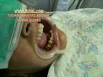 tooth buildup with composite fillings