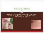 Fordyce Spots Treatment