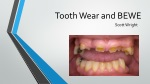 Tooth Wear and BEWE