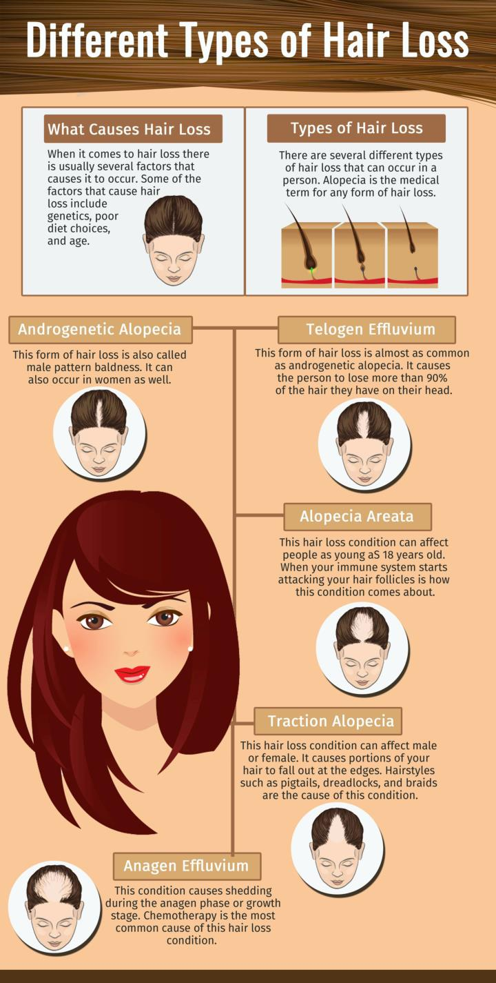 Ppt Different Types Of Hair Loss Powerpoint Presentation Free Download Id 7259392