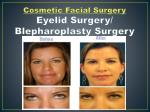Eyelid Surgery –Dr. Gregory Casey