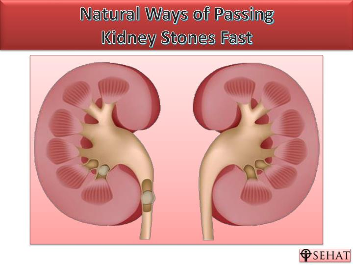 natural ways of passing kidney stones fast n.