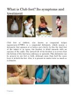 What is Club foot? Its symptoms and treatment.