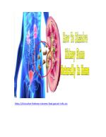 How To Dissolve Kidney Stone Naturally In Home, Herbs For Kidney Stones, Dissolve Kidney Stones