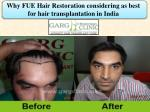 Why FUE Hair Restoration considering as best for hair transplantation in India