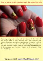 How to get rid of dark cuticles or dark skin around the nails