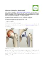 Important Facts To Know About Hip Replacement Surgery