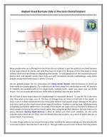 Implant Fixed Denture Only at Precision Dental Implant