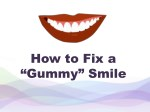 """How to Fix a """"Gummy"""" Smile"""