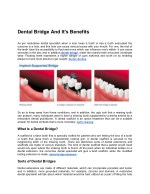 Dental Bridge And It's Benefits