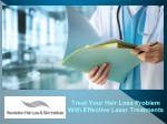 Treat Your Hair Loss Problem With Effective Laser Treatments