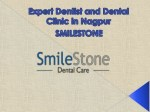 Expert Dentist and Dental Clinic in Nagpur