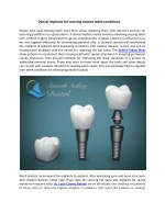 Dental implants for reviving missed teeth conditions