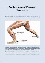 An Overview of Peroneal Tendonitis