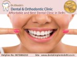 Affordable and Best Dental Clinic in Delhi