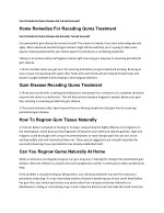 Home Remedies For Receding Gums Treatment