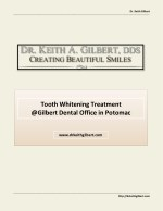 Tooth Whitening Treatment @ Gilbert Dental Office in Potomac