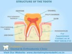Top and Best Dental Clinic in Delhi
