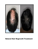 Natural Ways To Stop Hair Loss, Hair Regrowth Home Remedies, Best Medicine For Hair Regrowth