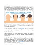 10 Things to consider before having a hair transplant