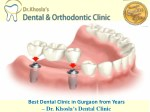 Looking for the Best Dental Clinic in Gurgaon? Contact Us.