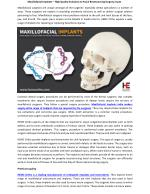 Maxillofacial Implants – High Quality Solutions to Facial Restructuring Surgery Issues