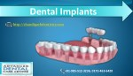 Best Dental implant surgery in chandigarh