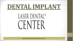 Growing Demand Of Dental Implant These Days