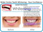 Wider Smiles Teeth Whitening - It'a Really Working