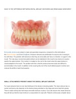 WHAT IS THE DIFFERENCE BETWEEN DENTAL IMPLANT DENTURES AND REMOVABLE DENTURES?