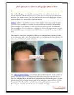 Hair Transplant in Chennai- Things You Need to Know