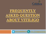 Frequently Asked Question about Vitiligo