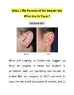 What's The Purpose of Ear Surgery and What Are Its Types?