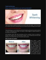 Teeth whitening: know everything before you go!!