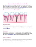 Top Reasons You Should Consider Dental Implant