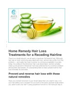 Home Remedy Hair Loss Treatments for a Receding Hairline