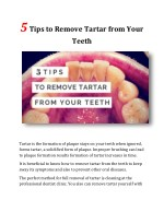 5 Tips to Remove Tartar from Your Teeth
