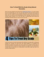 How To Deal With Dry Scalp Using Natural Remedies