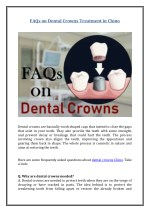 FAQs on Dental Crowns Treatment in Chino