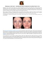 Melasma on the Face? - Deciding On which Treatment is the Best One for You