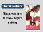 Things You Need to Know Before Getting Implants
