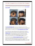 FUE Hair Transplant Process For Better Hair Transplant