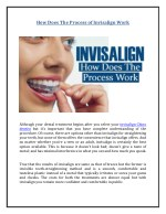 How Does The Process of Invisalign Work?