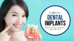 Dental Implants & Bridges: What Are They?