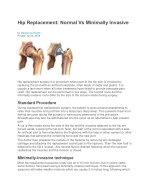 Hip Replacement: Normal Vs Minimally Invasive