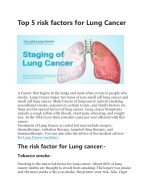 Top 5 risk factors for Lung Cancer