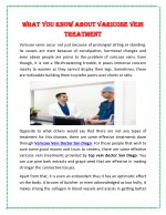 What You Know About Varicose Vein Treatment