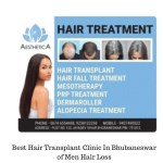 Best hair transplant clinic in bhubaneswar of men hair loss