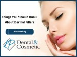 Things to Know About Dermal Fillers