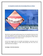 A Complete Guide into Invisalign Braces Chino